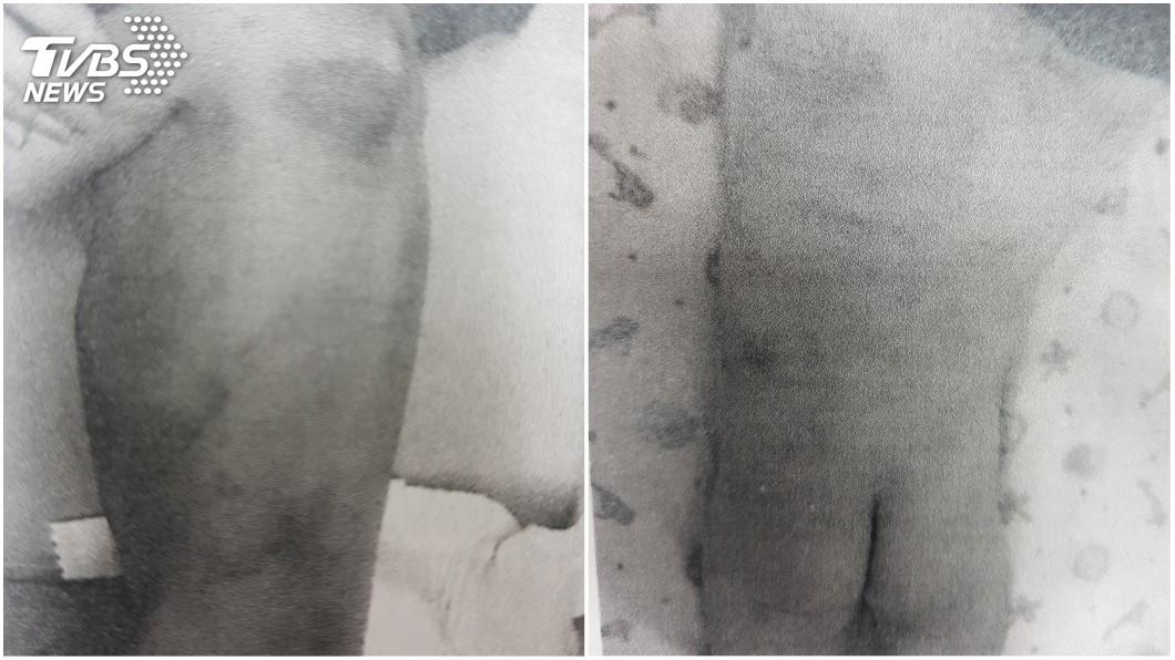 新竹縣一名男童遭繼母和2男女虐待,全身骨瘦如材,所幸經安置後已逐漸恢復。(圖/TVBS) 毒父服刑託顧2歲兒 妻偕2友BB彈射瞎掰他自虐