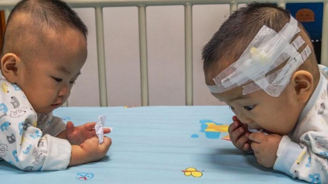 廣東一對雙胞胎罹患了罕見疾病,但父母親僅湊足1人的醫藥費。(圖/翻攝自陸網)