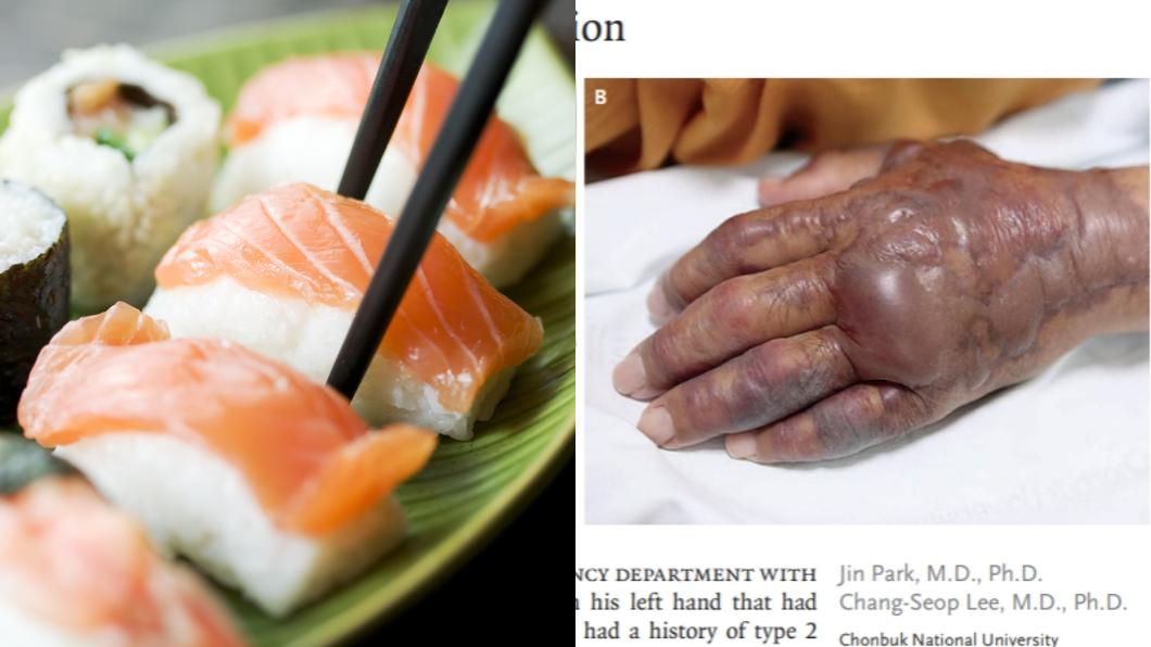 圖/TVBS、翻攝自新英格蘭醫學期刊 慎入!爽吃生魚片壽司 阿伯回家竟手臂感染遭截肢