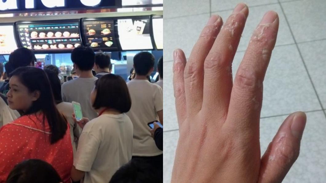 圖/TVBS資料照與翻攝臉書 「麥當勞之亂」打烊班員工手泡爛脫皮 嘆:錢真難賺