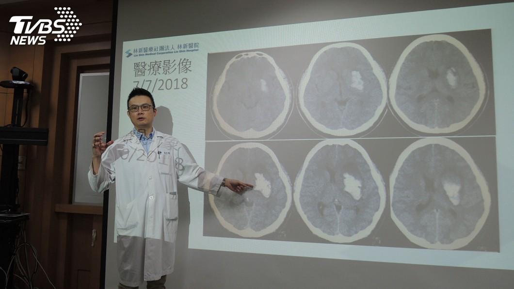 示意圖/TVBS 年輕人莫忽視!36歲男子突跌倒失語 腦出血中風