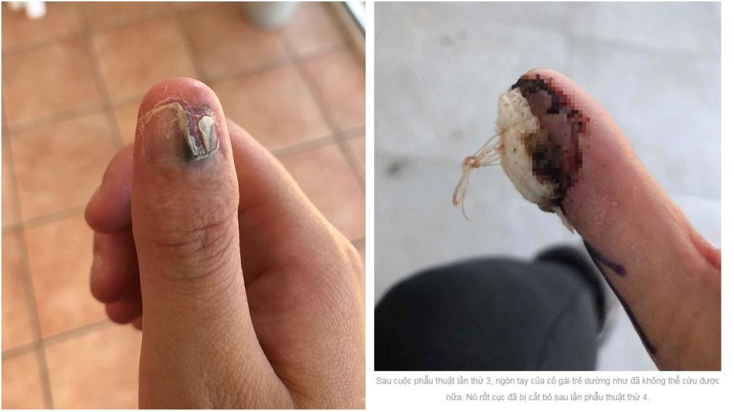 圖/翻攝《snews.vn》 愛「咬指甲」竟得癌症 少女最後只能截肢保命