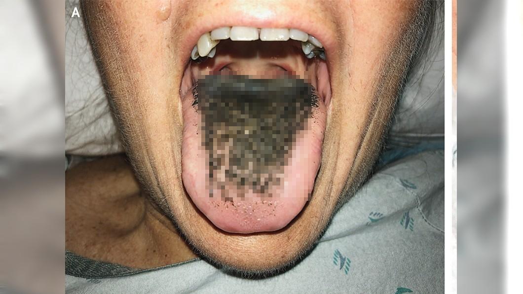 密集恐懼慎入!婦受傷吃抗生素 舌頭竟長滿「黑色絨毛」