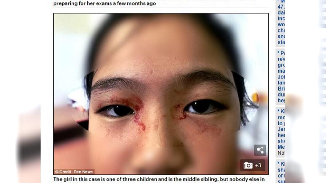 圖/翻攝自Daily Mail網站 考試壓力大頭痛 女童竟流「血汗」滿臉鮮紅