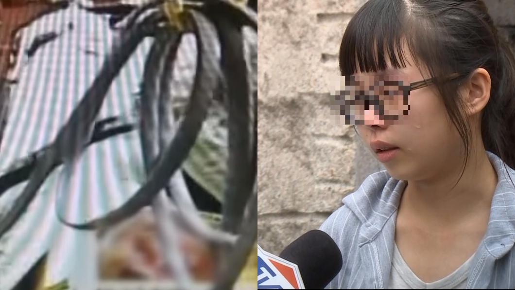 圖/TVBS資料照 父無辜遭槍擊「左眼掉出」失明 女兒泣:求司法還公道