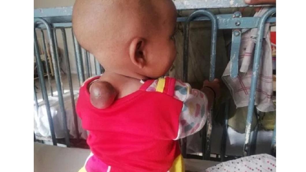 圖/翻攝自《都市報》 女嬰患怪病 背後長出「網球」大腫瘤