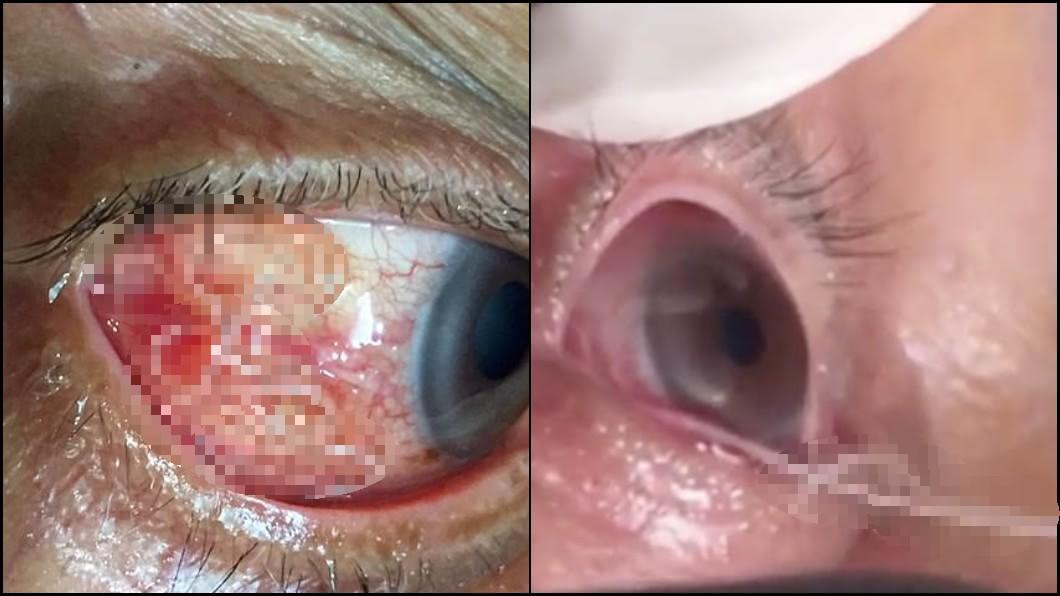 圖/翻攝YouTube 悚!阿公眼睛又癢又痛 就醫竟抽出「15公分寄生蟲」