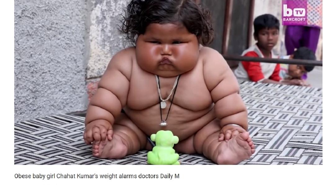 圖/翻攝自Soha Salah YouTube 16月大女嬰罹罕病 重25公斤宛如米其林人