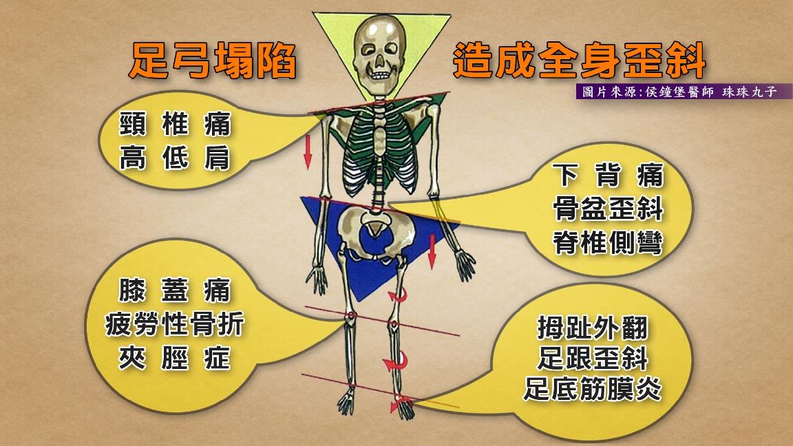 京都同仁堂 腰痠背痛治不好 竟是足弓造成骨盆歪斜