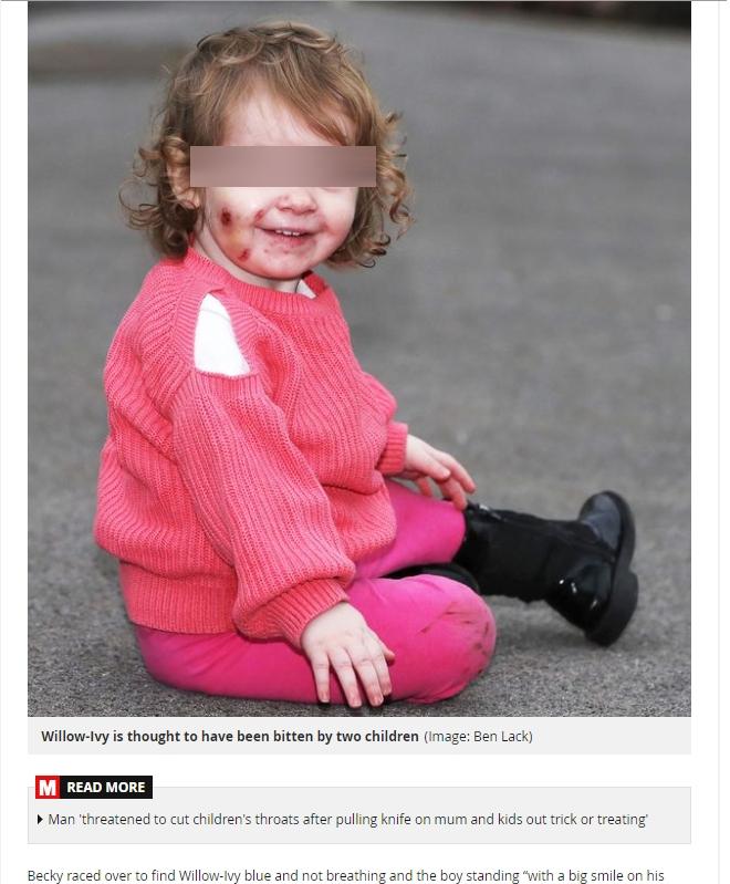 17歲女童葳洛艾薇全身多處慘遭3歲男孩咬傷。圖/擷取自Daily Mirror