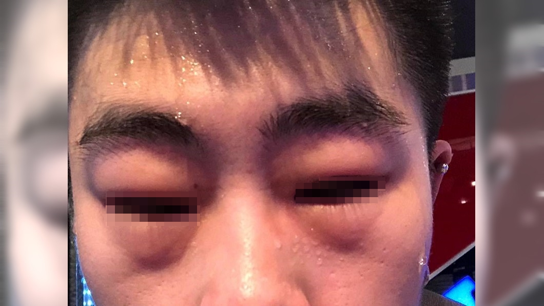 圖/爆料公社 健身房毛巾擦汗!他臉腫呼吸困難 前員工:真的別用