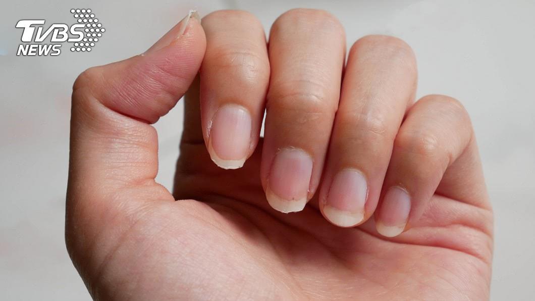 京都同仁堂 16種指甲透露警訊! 「這種」恐是罹癌前兆