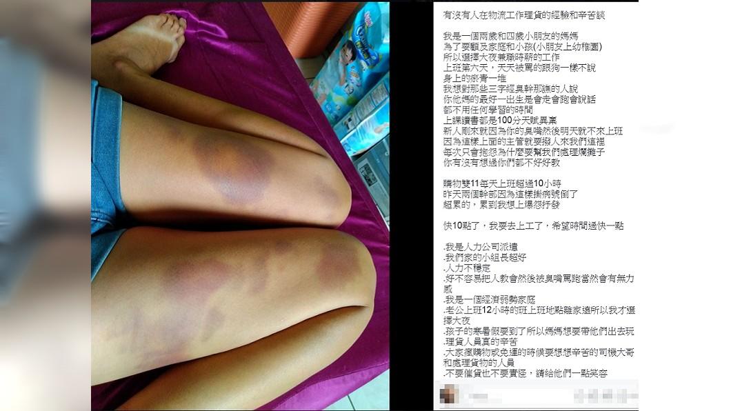 一名媽媽從事物流大夜班,除了雙腿瘀青還被上司責罵。圖/翻攝自臉書爆怨公社 心疼!雙11消費者買翻 物流員理貨雙腿滿滿瘀青