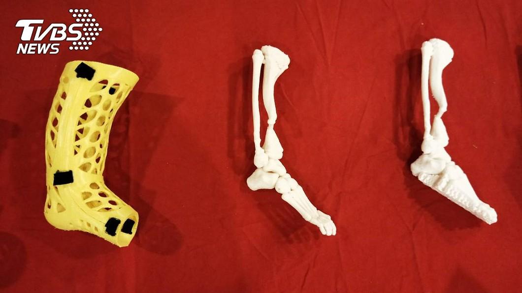 三總團隊結合3D技術,列印出阿莫的1:1骨頭模型(右、中);左為可拆卸式石膏,可隨時查看骨頭癒合情形。(圖/TVBS)