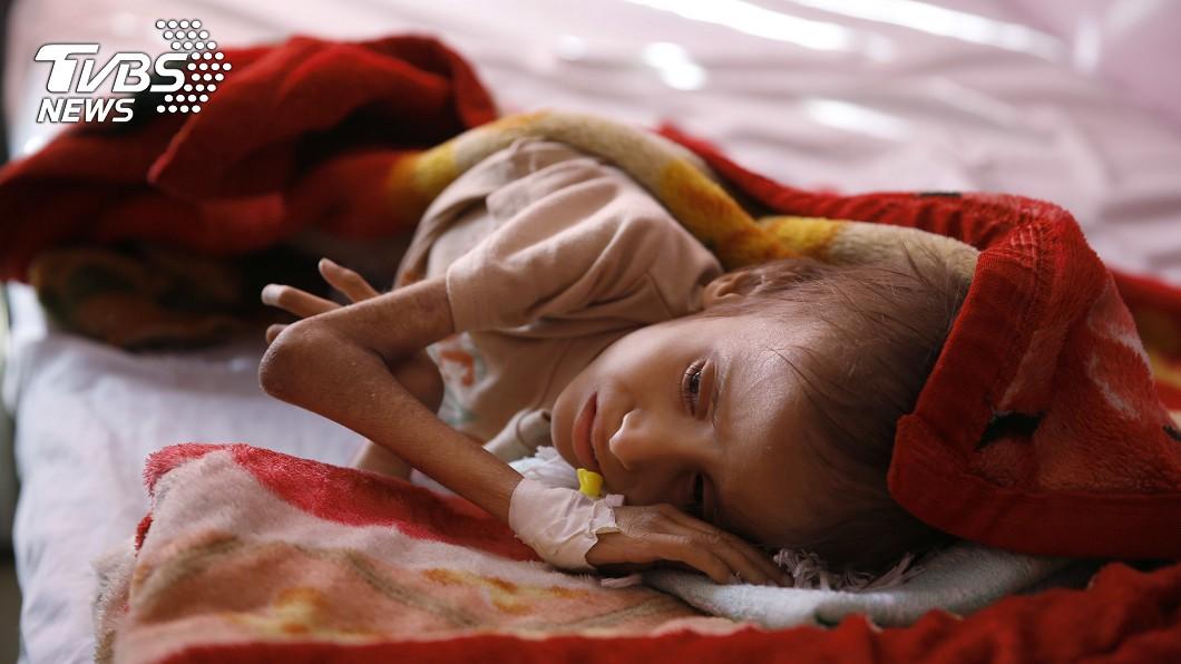 圖/達志影像美聯社 虛弱到沒力哭…葉門8.5萬兒童遭活活餓死