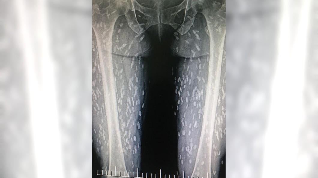 圖/翻攝自臉書 生食豬肉感染寄生蟲 女體內「上百隻鑽竄」X光照曝光