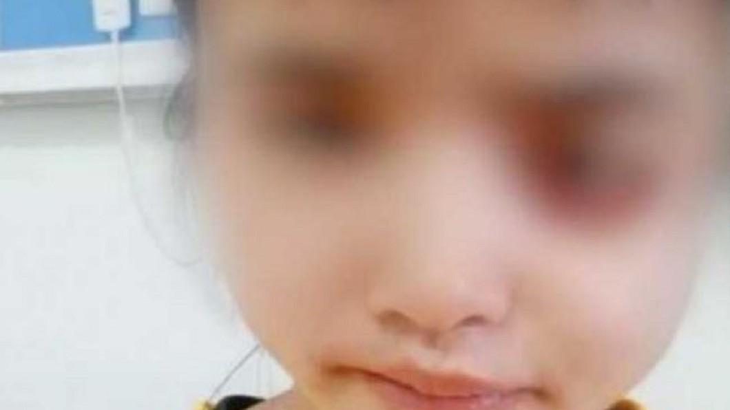 圖/翻攝《看看新聞》 兩光醫亂拔牙!少女臉遭菌侵蝕 「眼球掉出」掛在外