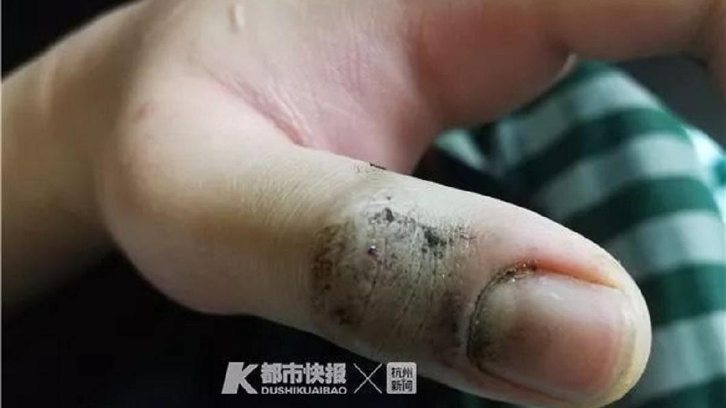 少年的大拇指被咬了一口,所幸緊急送醫急救保住一命。(圖/翻攝自微博)