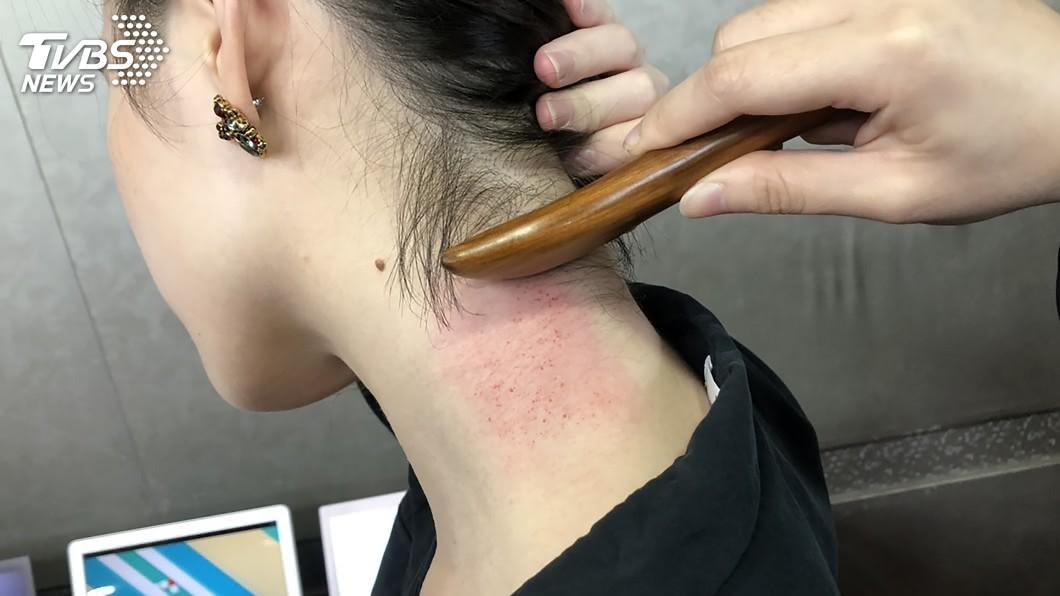 圖/中央社 肝炎致肝纖維化 研究:愈早治療可望逆轉