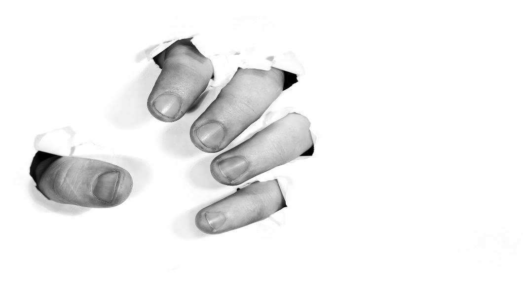圖/翻攝自Pixabay DIY出意外秒噴血 她「左手拎右手掌」求救