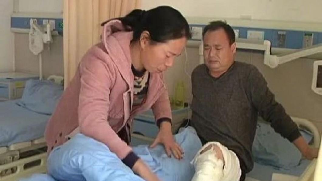 李辰璽的父親與醫師討論後,決定將左腿皮膚捐給女兒做移植手術。圖/翻攝自《微博》