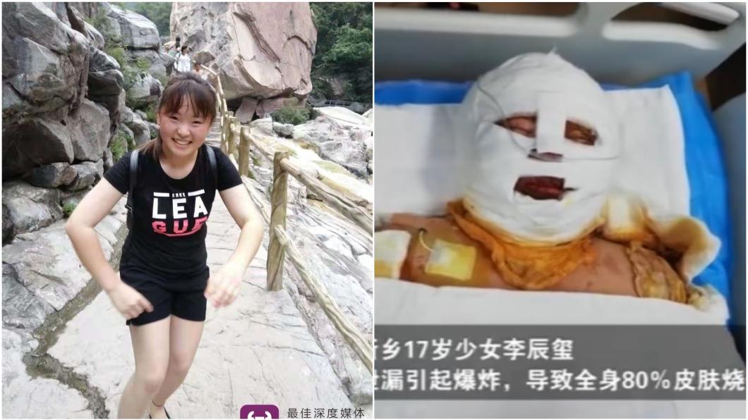 圖/翻攝自《微博》 為何沒來看我?17歲少女遭火吻 父不現身真相惹淚崩