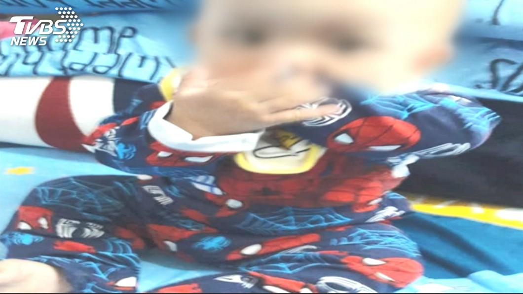圖/TVBS 男嬰疑遭保母施虐顱內出血!32小時搶救仍不治