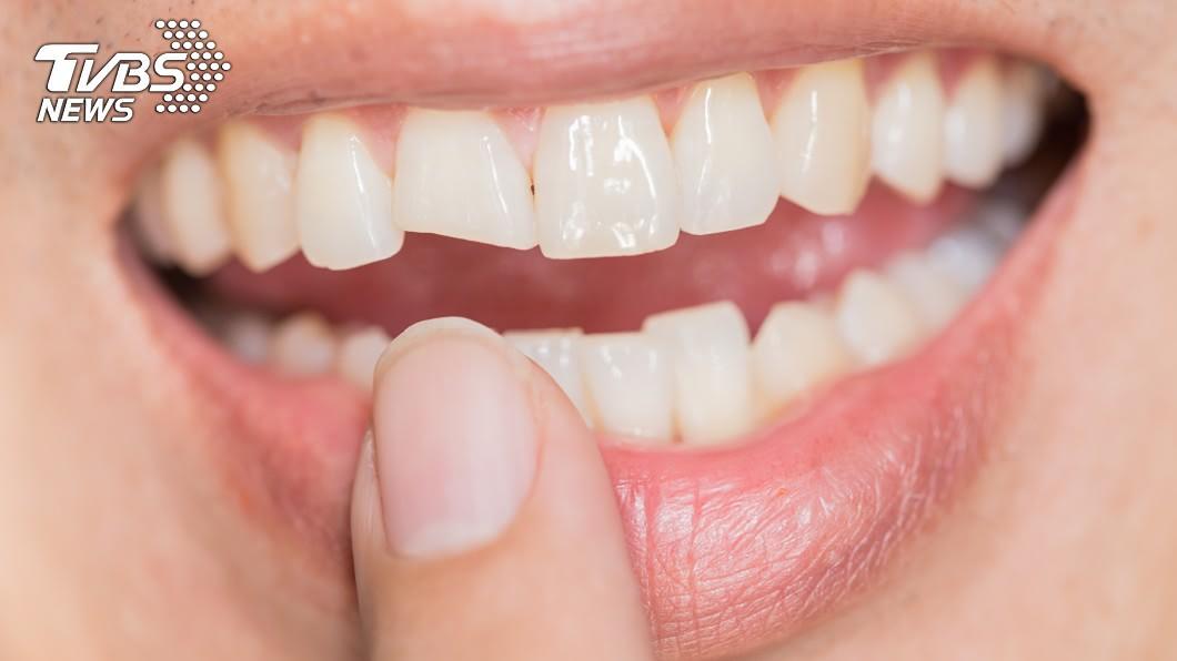 有研究發現,牙周病發生恐和胰臟癌有關連。(示意圖/TVBS) 小心!「8癌變警訊」曝光 牙周病是胰臟癌前兆