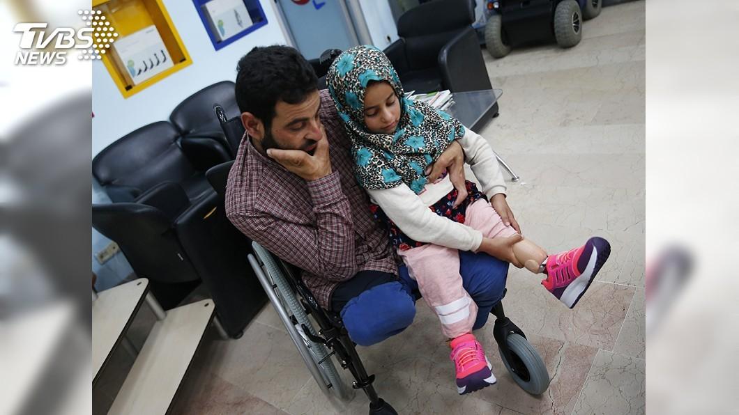 圖/達志影像美聯社 昔用罐頭走路 敘利亞8歲女童裝義肢重獲新生