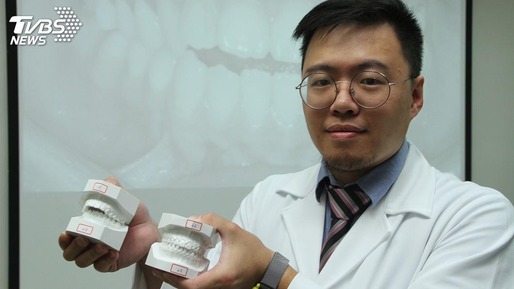 圖/中央社 前牙開咬困擾進食 女矯正逾兩年獲改善