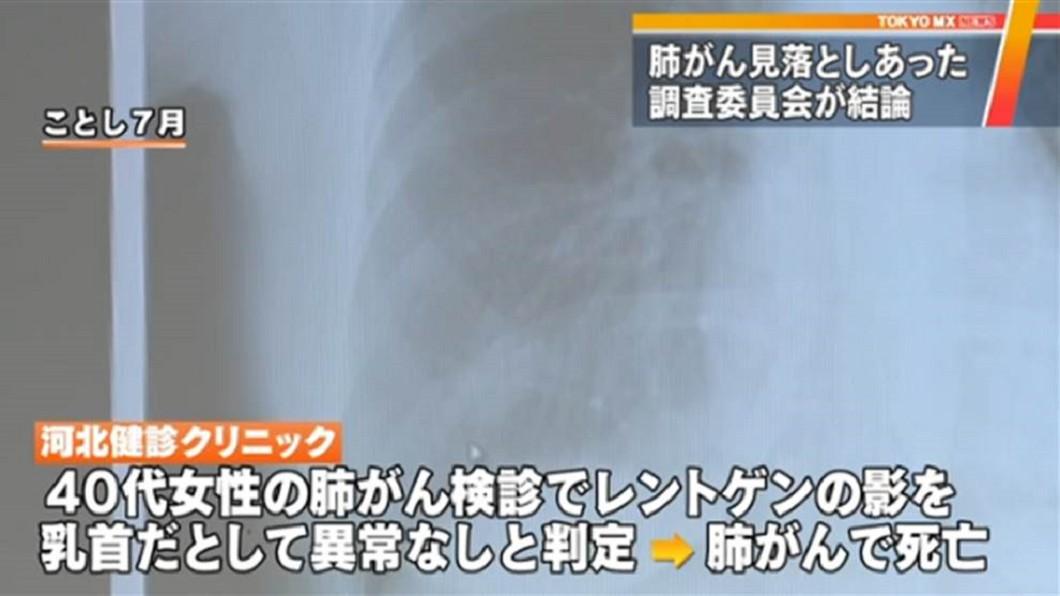 圖/翻攝《東京MX新聞》 醫生錯把陰影當乳頭 女罹肺癌被誤診3次冤死