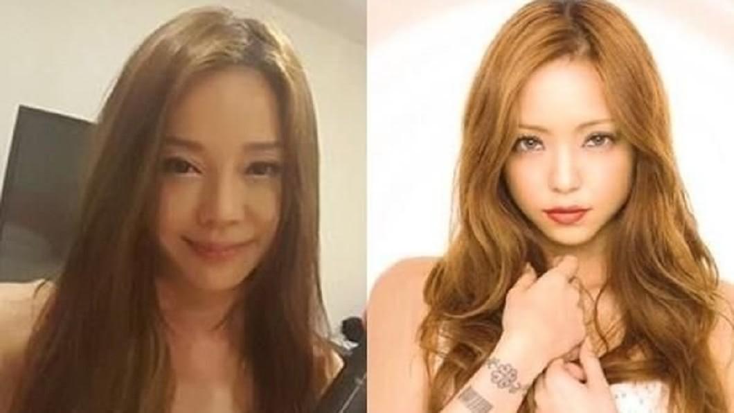 診所貼出狄鶯(圖左)和日本天后安室奈美惠的對比照。(圖/翻攝自醫美診所官網)