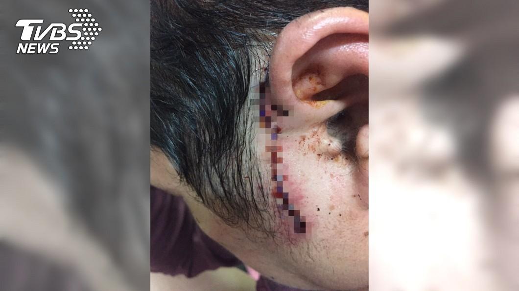 薑母鴨店老闆左朵、臉頰遭砍傷,送醫縫了多達14針。圖/TVBS