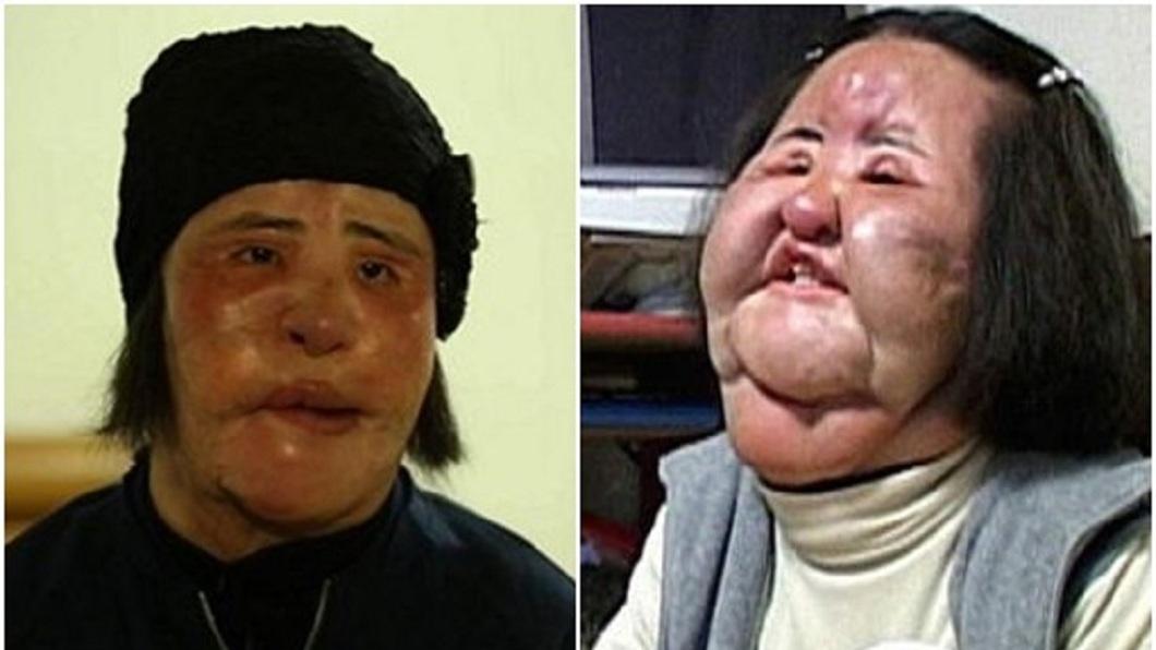 被封為「電風扇大媽」的南韓女子韓慧景,日前驚傳過世,享年57歲。(圖/翻攝自韓網) 注射沙拉油毀容!韓電風扇大媽過世 整形前美照曝光