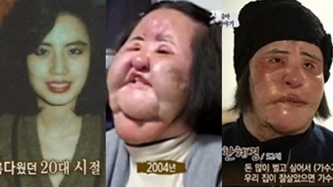 韓慧景在還沒接受非法整形前,其實也是個大美人。(圖/翻攝自韓網)