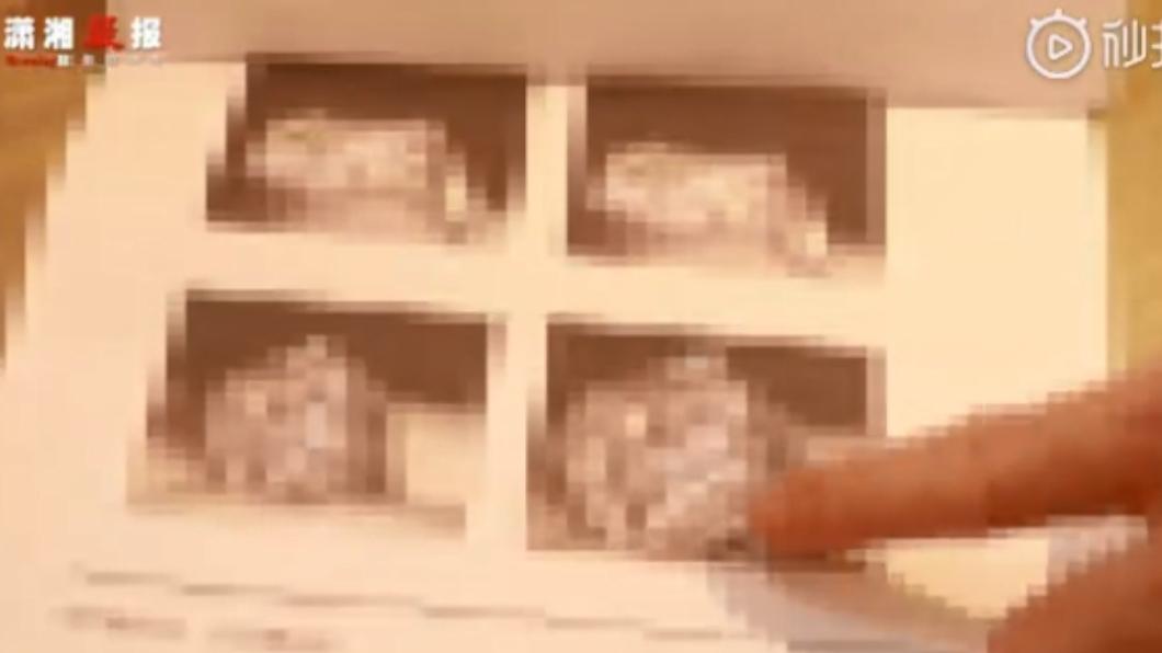 醫生曝光男子的生殖器照片。圖/翻攝自瀟湘晨報