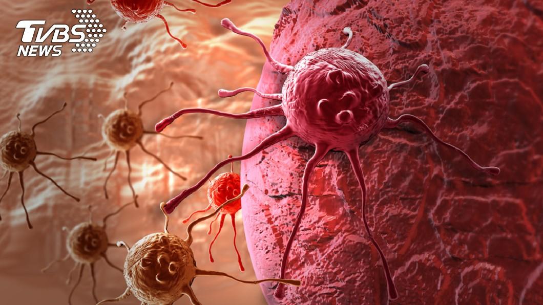 示意圖/TVBS 2018全球癌症統計出爐!最常得的是這種 死亡率最高