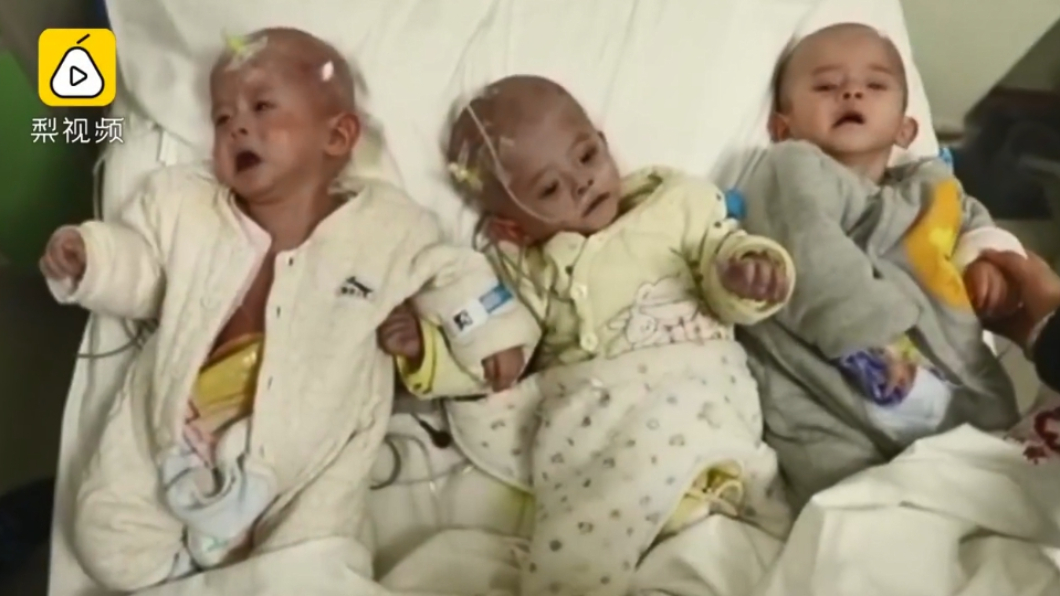 圖/翻攝自梨視頻 清貧夫妻生無肛3胞胎 絕望痛哭:救不了就捐遺體