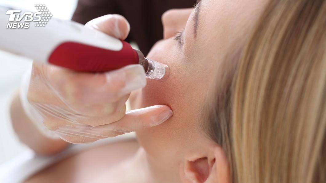 示意圖/TVBS 全台首例! 女在大陸打美容針疑肉毒桿菌中毒