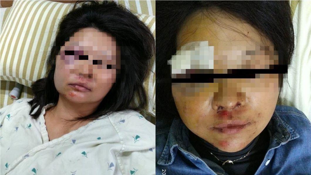 男網友表示,妻子騎車時被狗追,嚇得當場自摔,臉部多處擦傷及瘀青。圖/翻攝自臉書「爆料公社」 騎車被狗追 她摔成腦出血、臉毀容PO文勸世