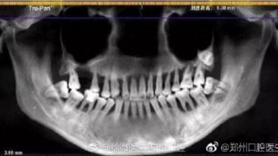 圖/翻攝自微博 妙齡女吃消炎藥緩牙痛 「上排牙全掉光」如80歲無牙婆