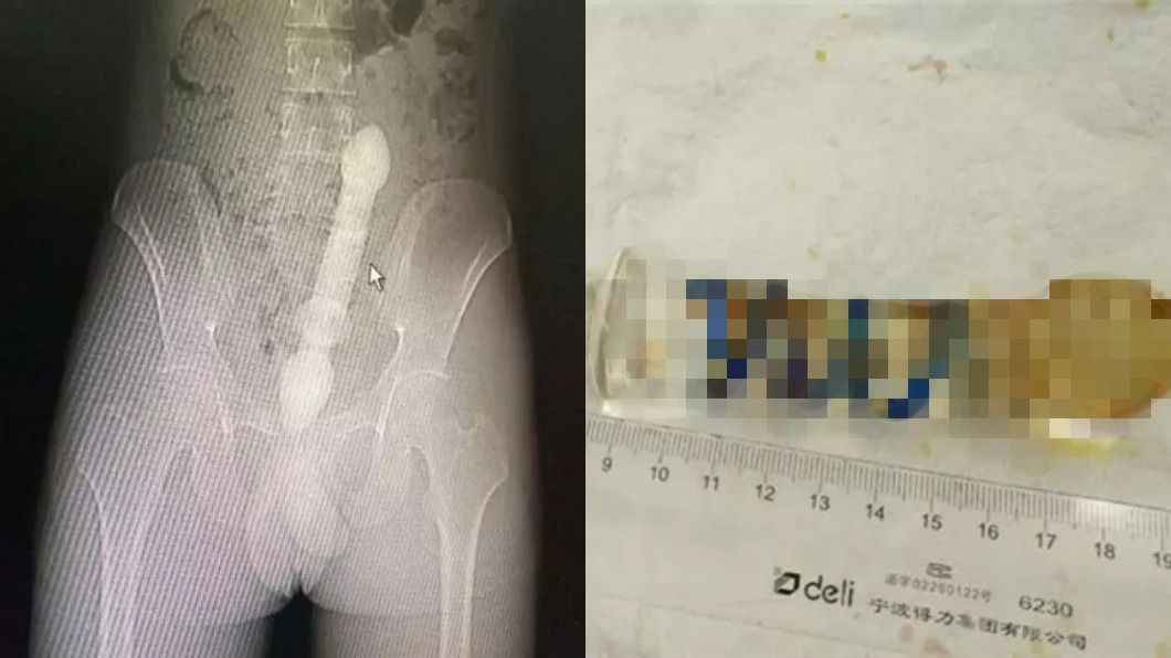 圖/翻攝自杭州網 男拿25cm玻璃棒塞肛門 「卡住」急喊:醫生救我!
