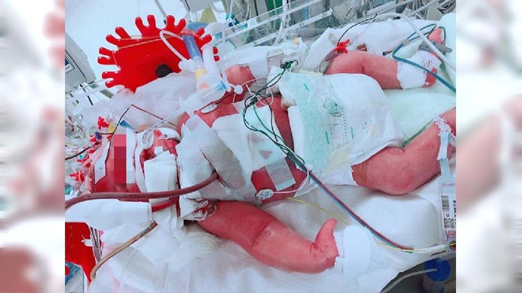 圖/翻攝爆怨公社 兒子「吐奶像噴泉」被說正常 出生15天…當小天使了