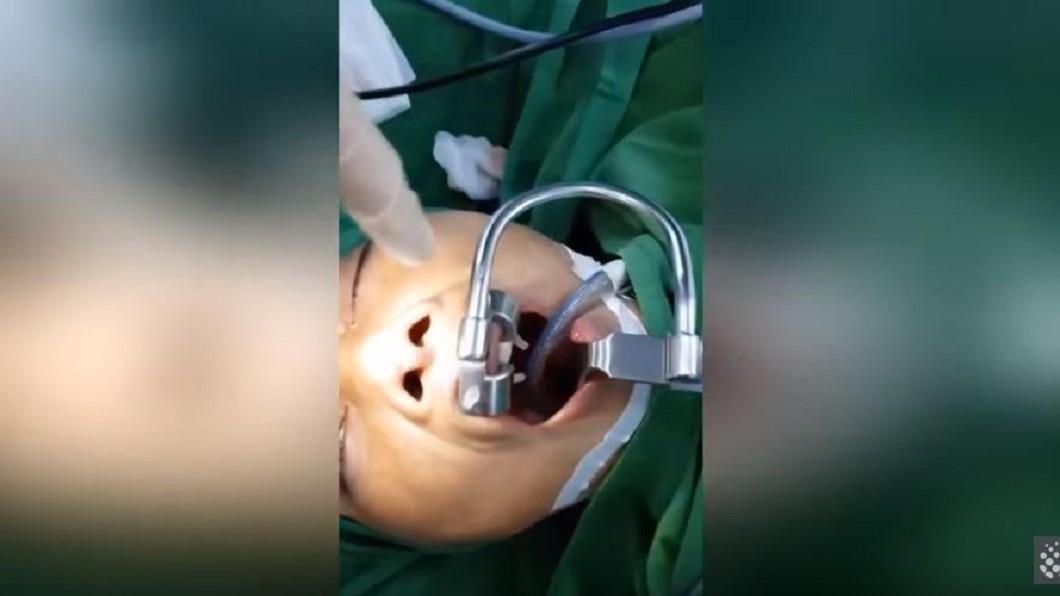 越南一名63歲的婦女因喉嚨不適就醫,才發現一隻水蛭待在她的喉嚨裡已經3個月。(圖/翻攝自YouTube) 婦人喉嚨異物感就醫 醫生驚「活水蛭吸了3個月的血」