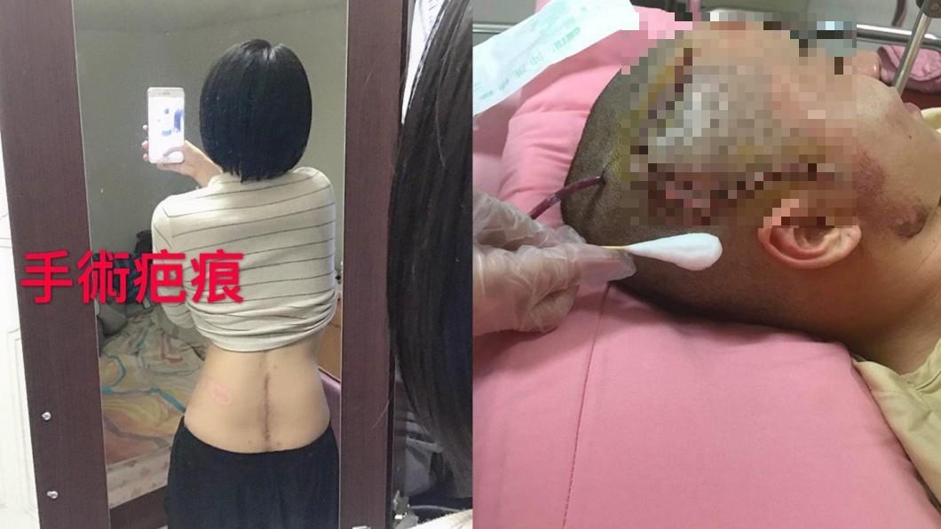 圖/翻攝自 當事人 臉書 少女遭撞「大小便失禁」 肇事運將不道歉還反告