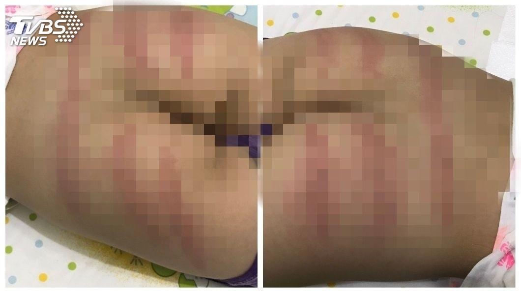 當時男童的臀部留下一道道紅色被打的痕跡。(圖/TVBS)