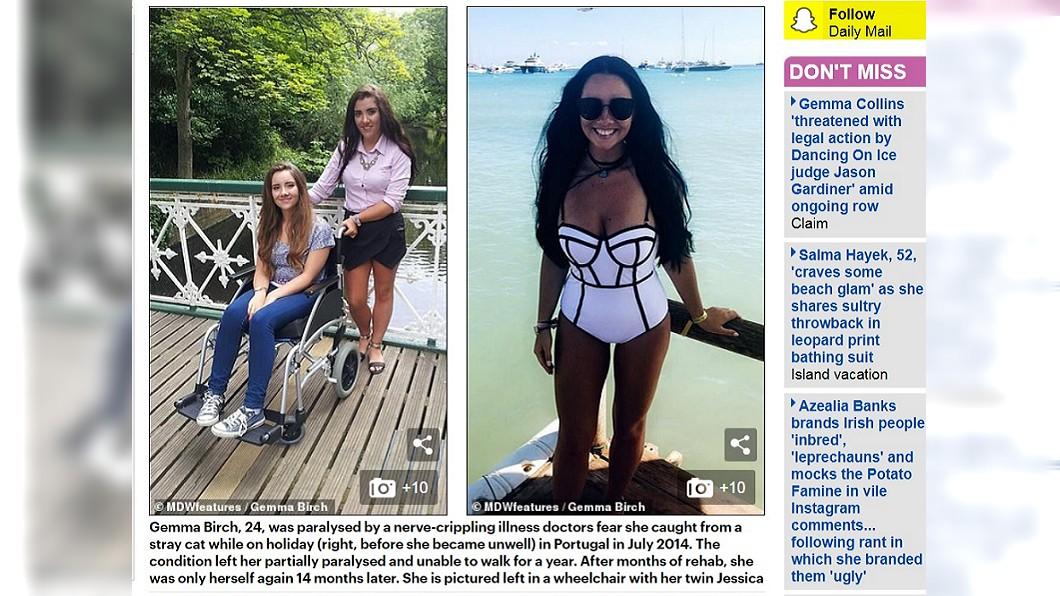 圖/翻攝自DailyMail 隨手摸摸流浪貓 她「狂吐+便溺失禁」癱瘓18個月
