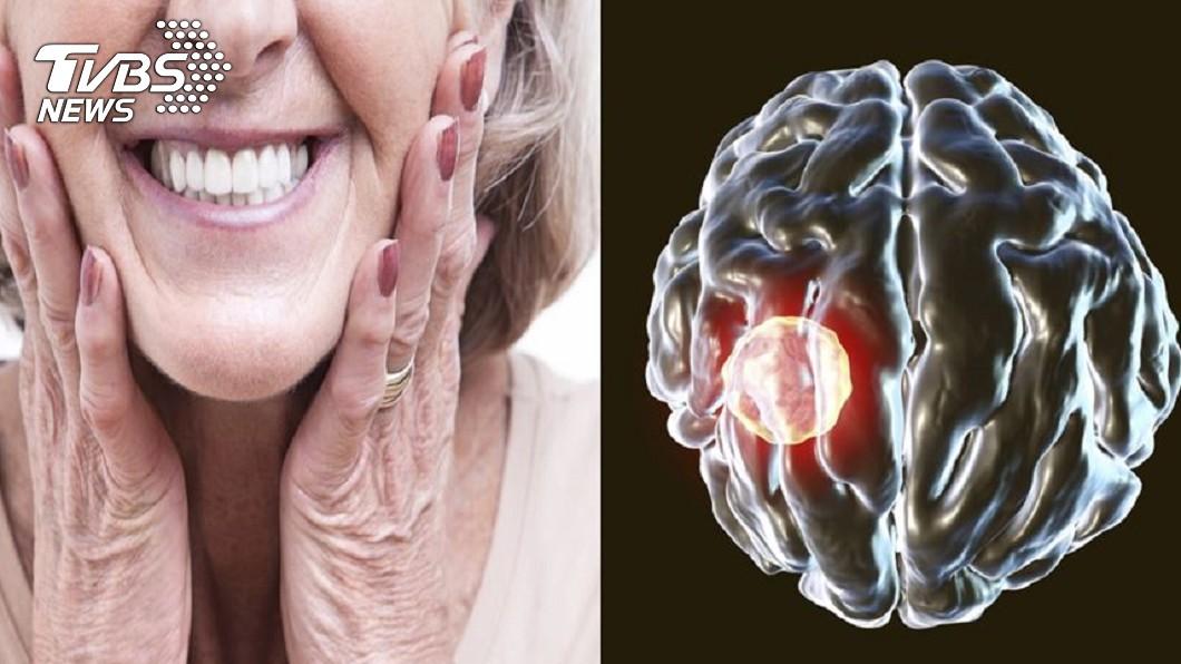 82歲阿嬤假牙清潔不佳,又有15顆蛀牙,造成「細菌蛀腦」。合成圖/TVBS 細菌蛀腦!她小中風+右邊癱瘓 只因沒洗假牙