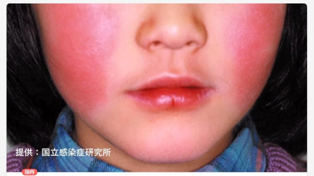 日本東京「蘋果病」正流行。圖/翻攝自FNNPRIME 「蘋果病」現花蓮!孕婦感染險流產 醫:台灣可能正流行