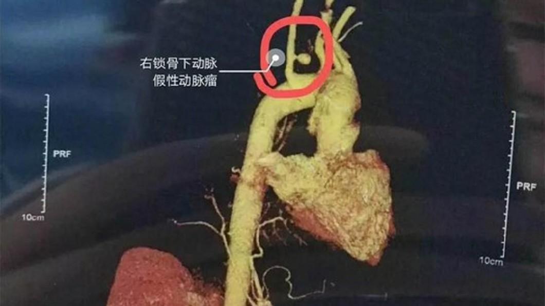 婦人誤吞魚刺吐血險喪命。圖/翻攝微博